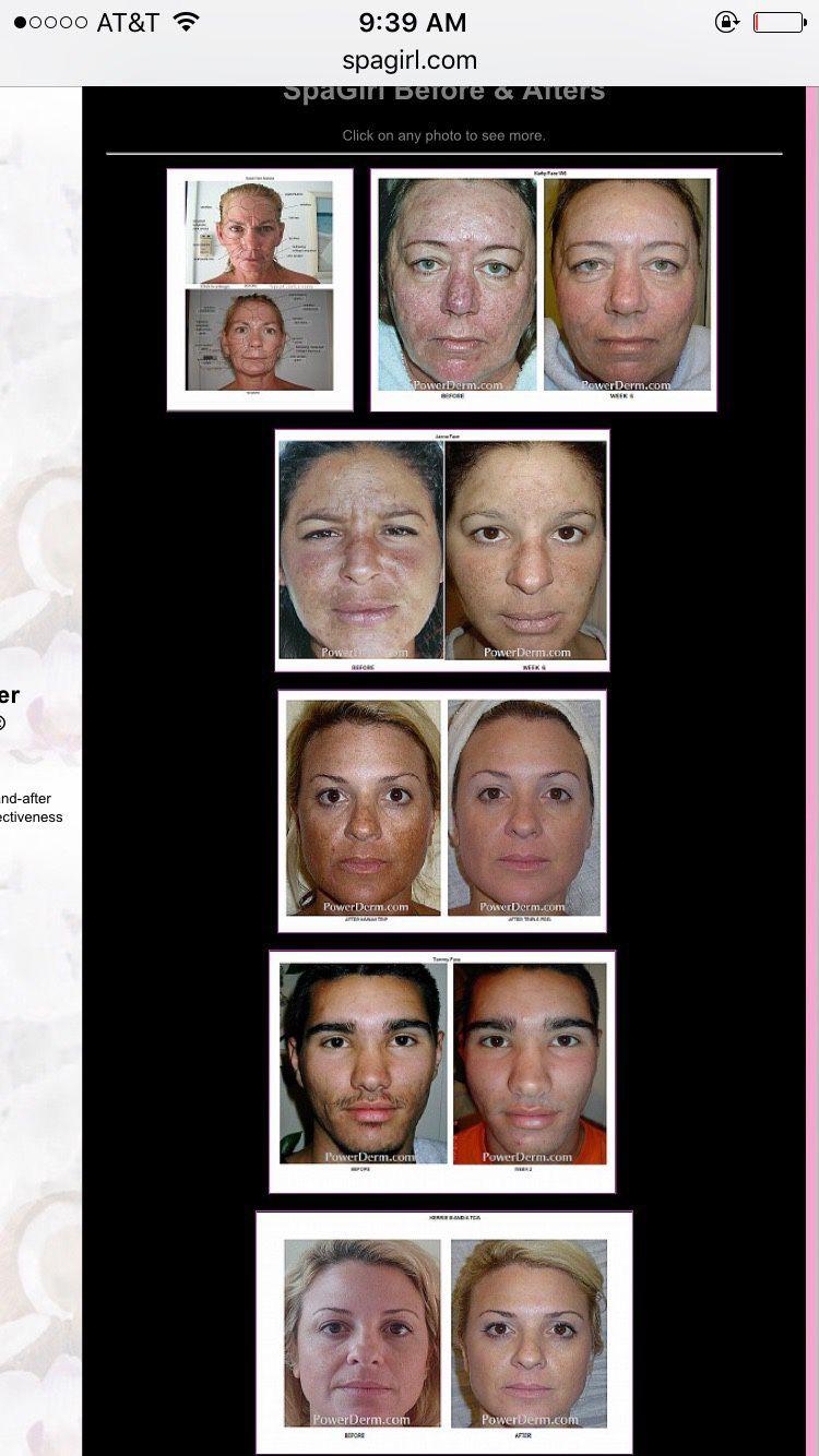 Kinetic Dermabrasion Facial equipment