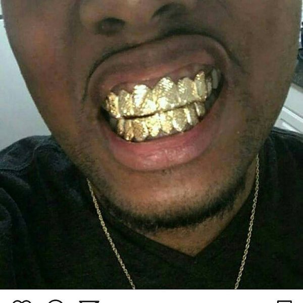 Custom gold teeth for Sale in Providence, RI - OfferUp