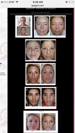 Kinetic Dermabrasion Facial equipment Thumbnail